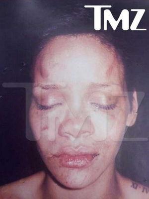 Rihanna cu fata tumefiata